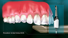 Clear Aligner Technology-Orthodontics